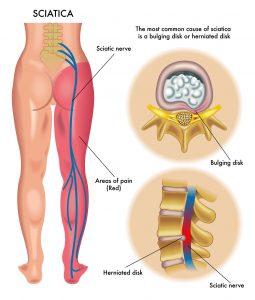 Osteokhondroz du service cervical de lépine dorsale с5 с7